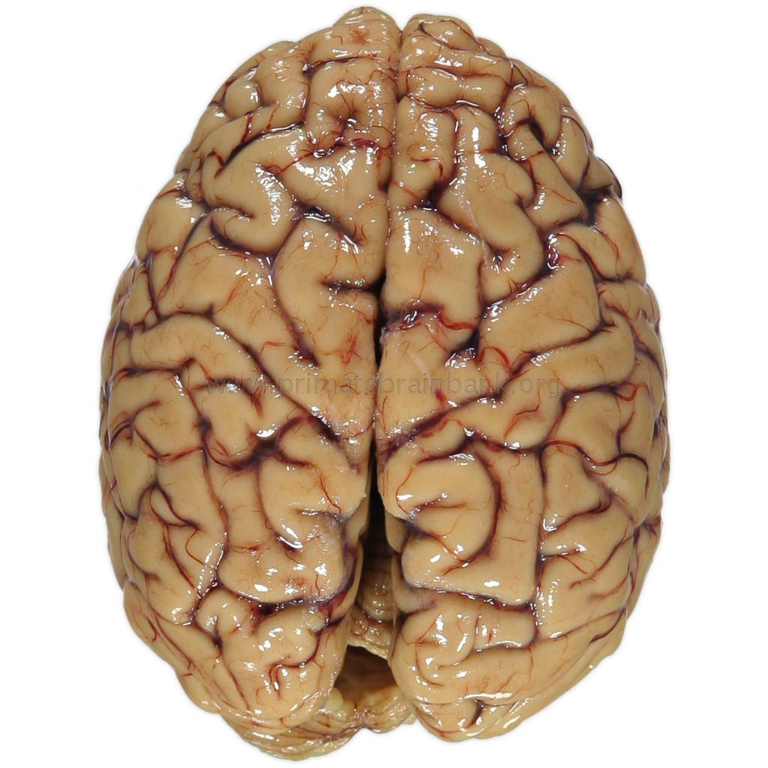 an analysis of the human brain An analysis of the expression levels of each gene makes it possible to calculate the relative mrna pool for each of the categories the analysis shows that 79% of the mrna molecules in the brain correspond to housekeeping.